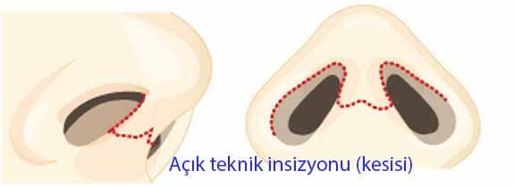 acik_teknik_kesisi_3
