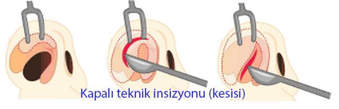 kapali_teknik_kesisi_1