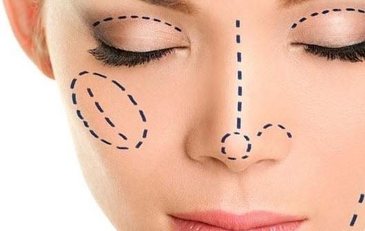 Burun ameliyatı sonrası dikkat edilmesi gereken 8 nokta