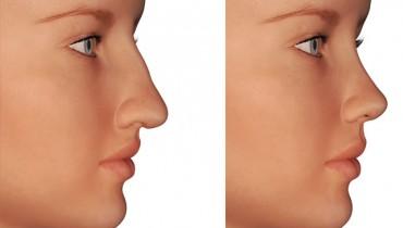 Burun Estetiği Ameliyatı Öncesi ve Sonrası Resimleri